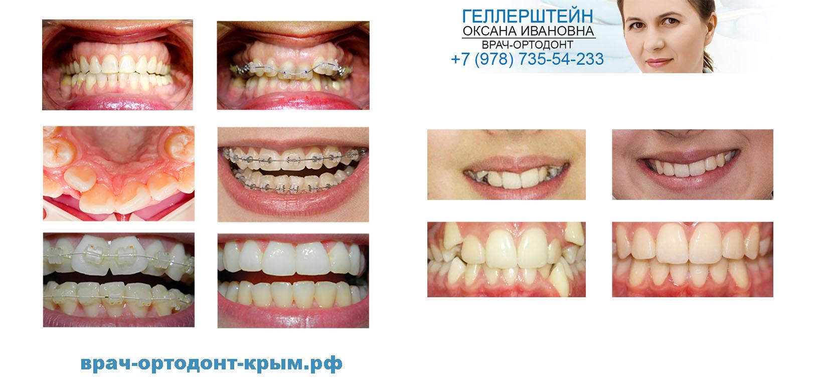 luchiy ortodont simferopol
